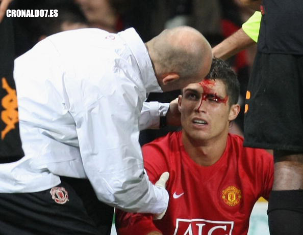 Cristiano Ronaldo suffered a cut eyebrow